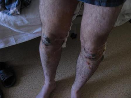 Example of Tsapki handiwork, Yuri Shevchenko:Two gunshot wounds to the legs. Not shown: cut off ear.